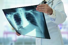 Radiología del aparato musculoesquelético